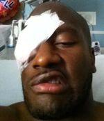 james harrison surgery eye meanest
