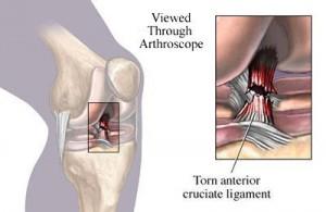 torn anterior cruciate ligament image